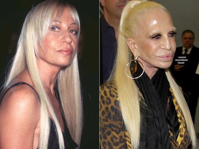 Donatella Versace antes y después de todas sus operaciónes
