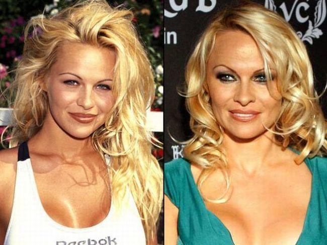 Pamela Anderson aún, pero era mucho más guapa antes de operarse